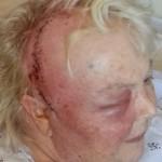 Jerolyn's Fifth skull surgery