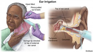 earirrigation
